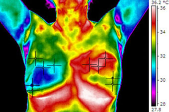 Permen Naturopathic provides breast thermography